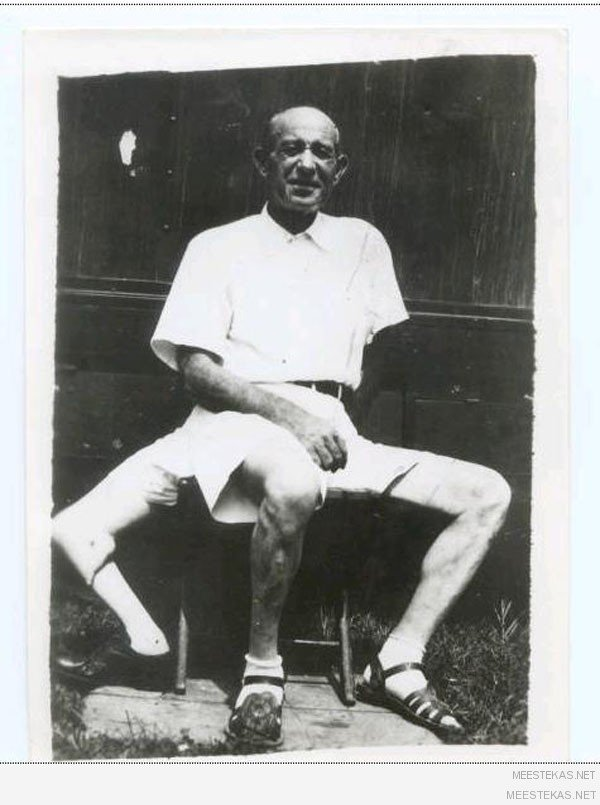 Франческо лентини (francesco a lentini) - человек родившийся с тремя ногами (2)