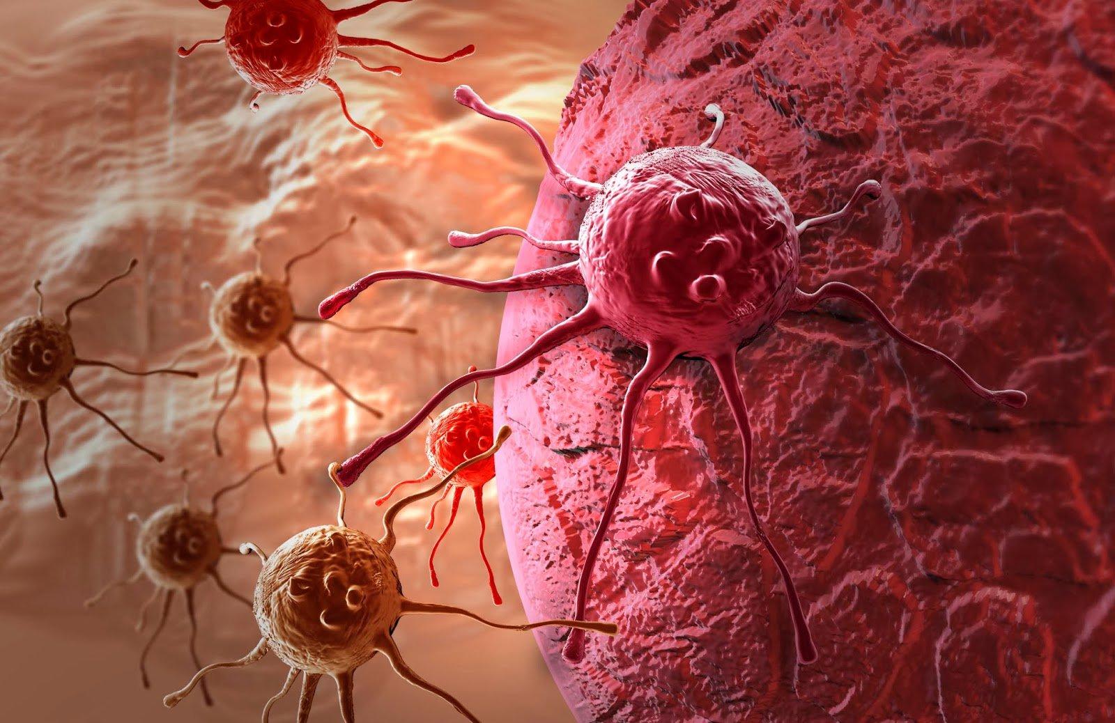 Pathologie rachis moelle nerf - Campus de Neurochirurgie Maladie de paget des os photos
